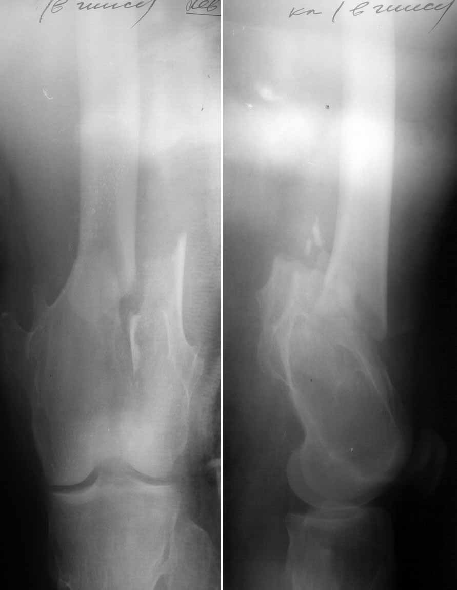 fracture ncp The orthopaedic nurse will undoubtedly care for patients with ankle injuries ankle sprains and fractures are common injuries seen in orthopaedic p.